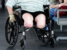 A man in a wheel chair at the Princess Alexandra Hospital in Brisbane