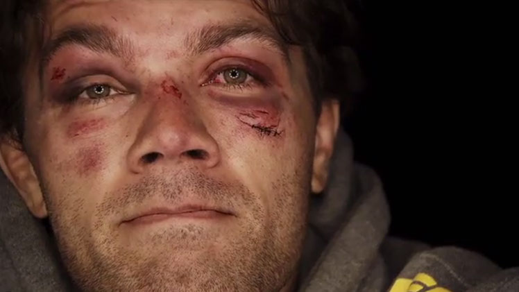 Face of a warrior ... Team Australia's Chris Indich shows the scars of battle following his bout with Chad Laprise.