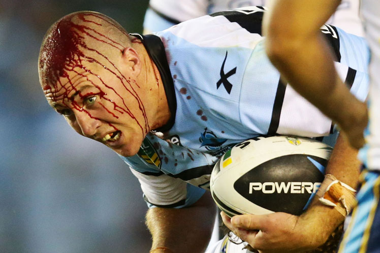 Bryce Gibbs of the Sharks cuts a scary figure after cutting his head against the Titans. Picture: Getty
