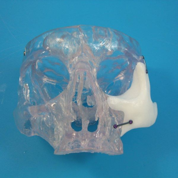Anatomics scull