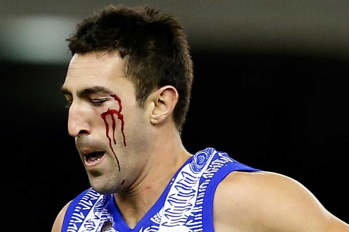 Michael Firrito came off second best after a clash with Vickery.