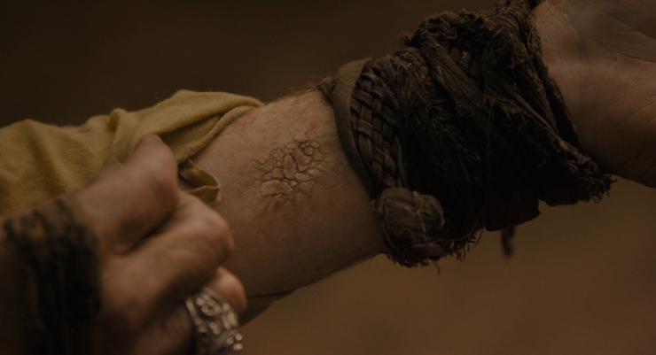 Jorah's Greyscale-ridden arm.