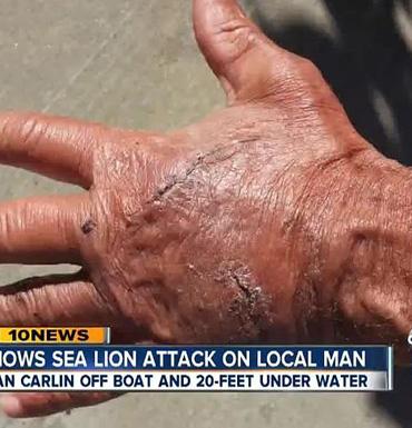 injured-hand