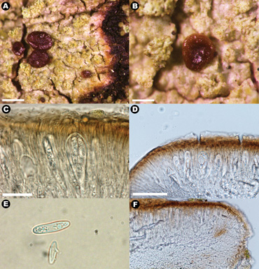 parton-lichen