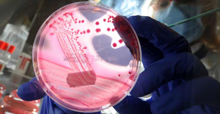 Antibiotic resistant superbugs have killed 18 people in Australia.