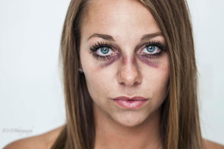 The images allegedly highlight the physical impacts of domestic violence. Photo: Twitter