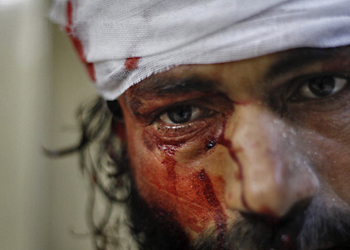 wounded syrian man