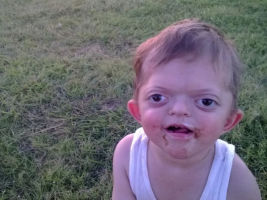 The four-year-old suffers from pfeiffer syndrome.