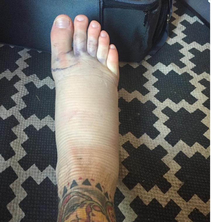 The result of Swan's fractured fibula Instagram
