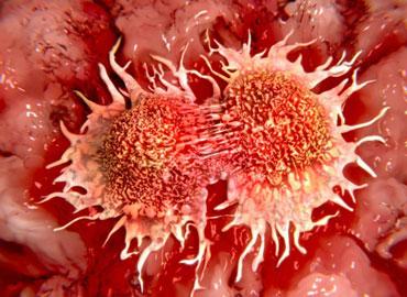 rare cancer
