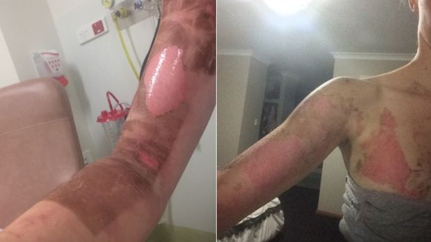 Thermomix burns