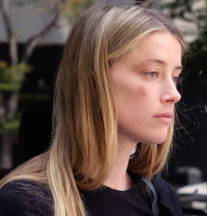 Amber Heard leaving court with a bruise on her face. Photo: AAP