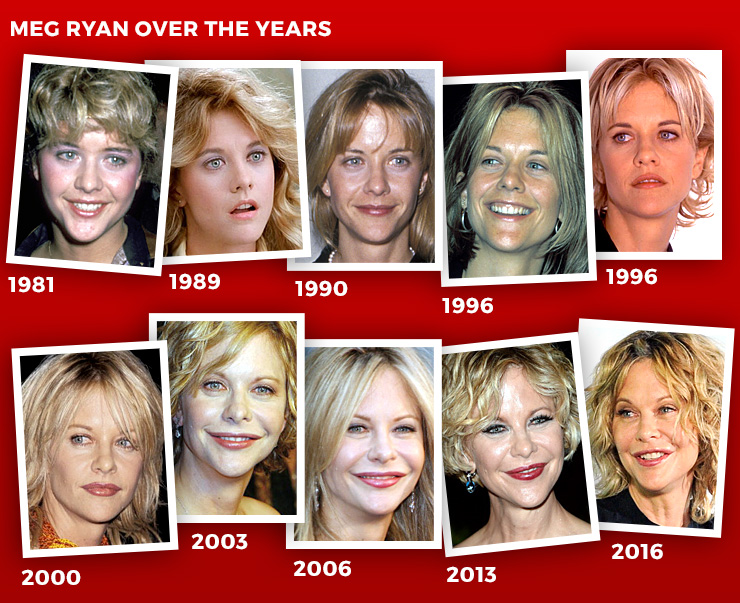Meg Ryan S New Face Trends On Social Media The New Daily