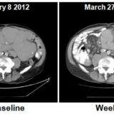 Cancer drug scans