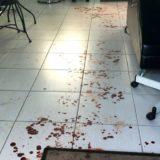 Salon blood Sydney
