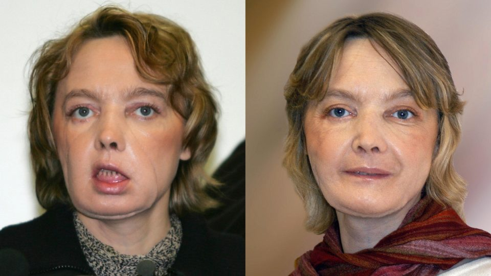 World's first face transplant recipient dies after illness