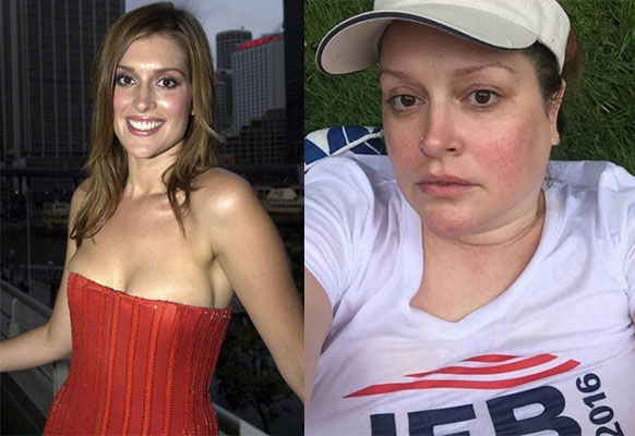 Kate Fischer before and after