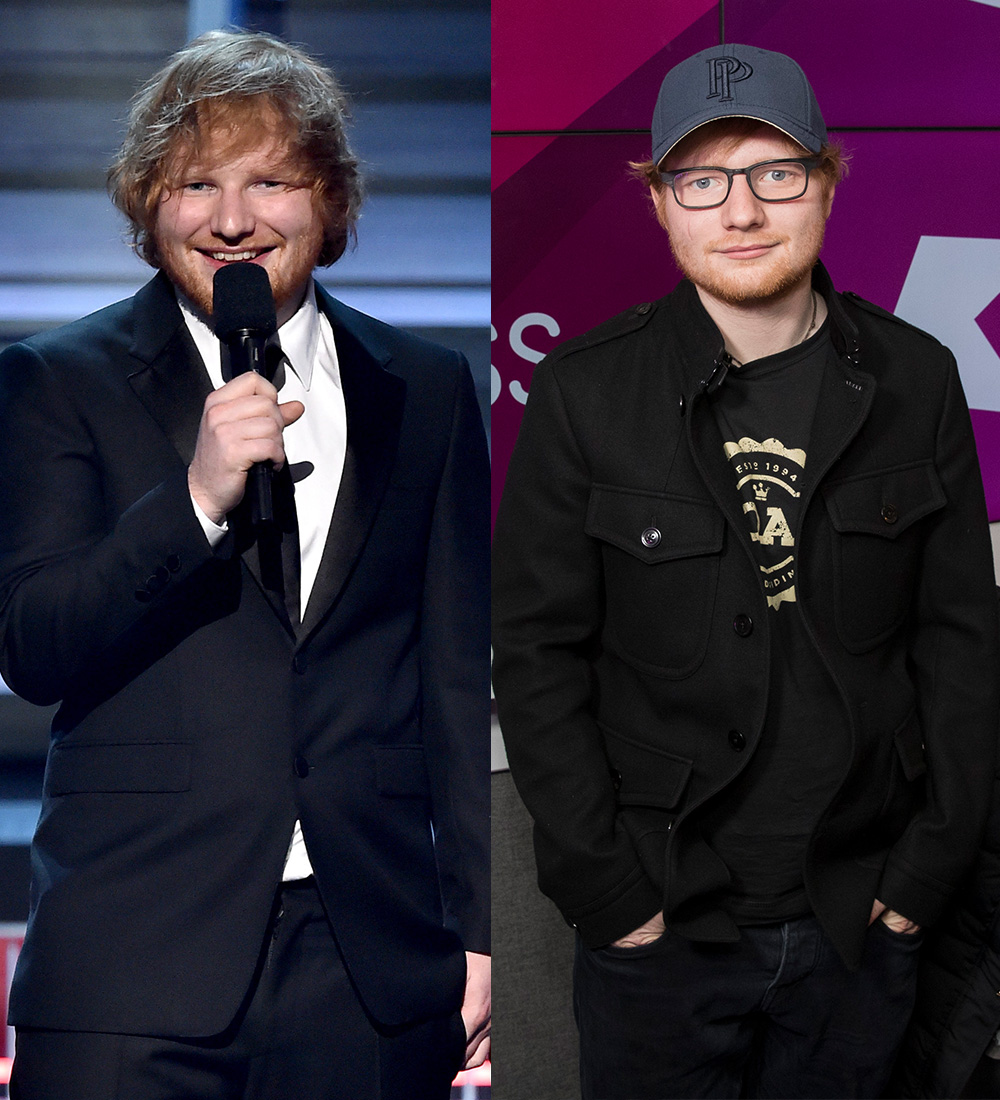 Before and after: Sheeran in