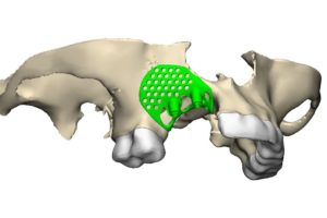 A scan of Susie Robinson's jaw with the 3D-printed implant