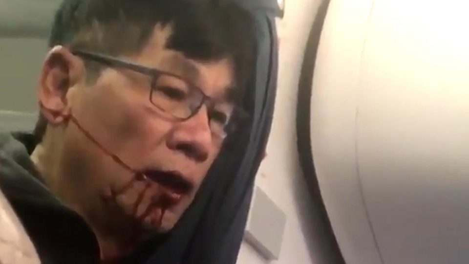 David Dao & United Airlines Reached An