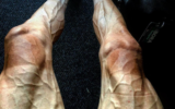 Polish cyclist Pawel Poljanski has shared a photo of his veiny legs after a gruelling 16 stages of Tour de France.