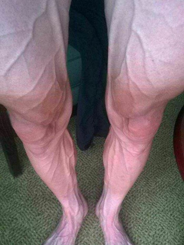 Bartosz Huzarski posted a picture of his legs after 18 stages in 2014.