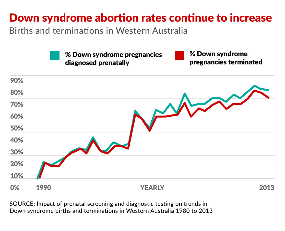 Down syndrome abortions are nearing 100 per cent