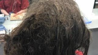 Teen's-matted-hair
