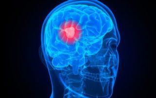 brain cancer scan