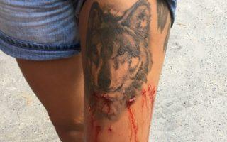 Woman bitten on leg by a crocodile
