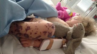 Young girl with meningococcal rash