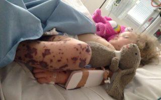 Young girl with meningococcal rash
