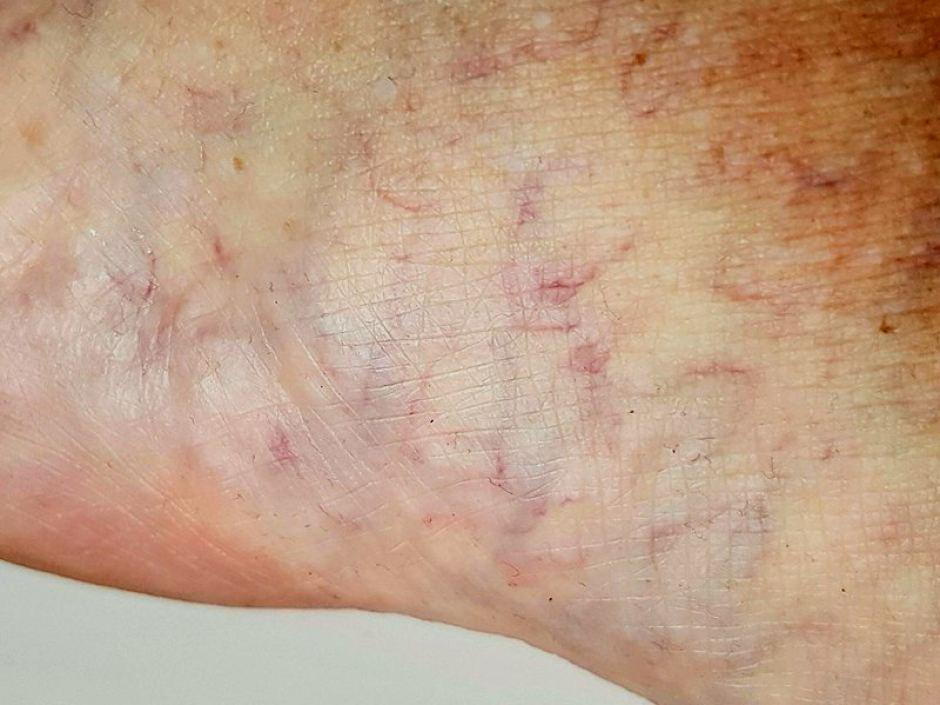 cream for swollen feet