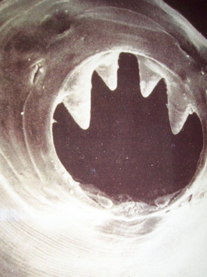 A hookworm's teeth and mouth are used to burrow into the host.