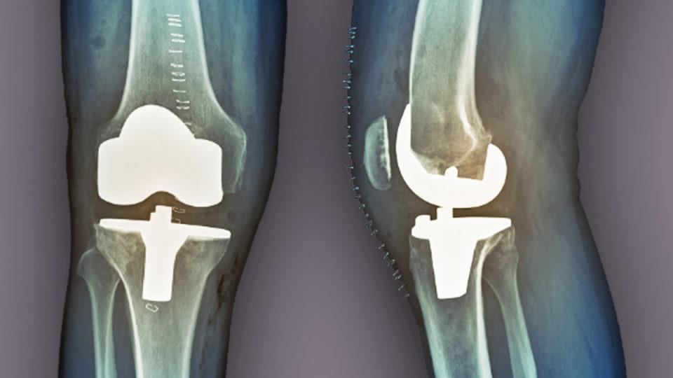 xray knee replacement