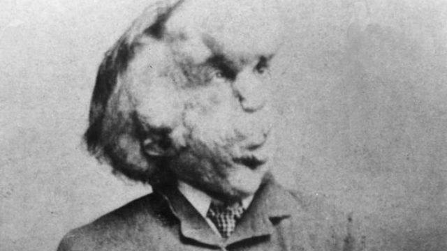 Elephant Man Joseph Merrick's unmarked grave 'found'