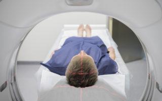 CT scanners v MRI scanners