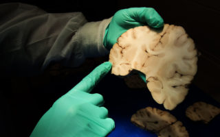 Dr. Ann C. McKee, Director of Boston Universitys CTE Center and Chief of Neuropathology at the VA Boston Healthcare System, analyzes brain tissue at the VA-BU-CLF Brain Bank in the Jamaica Plain neighborhood of Boston on May 31, 2017. Boston researchers who studied the brains of 202 deceased football players have published the most detailed portrait to date of the devastation wrought by a degenerative brain disease linked to repeated blows to the head. The study presents the largest number of CTE cases ever published and puts to rest any remaining arguments about whether the disease exists, said McKee, the studys lead author.