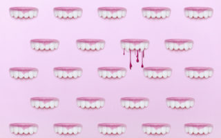 Bledding gums